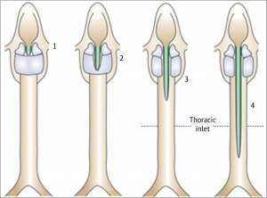 Benjamin-Inglis classification of laryngotracheal cleft: adapted from Benjamin & Inglis, Ann Otol Rhinol Laryngol 1989.
